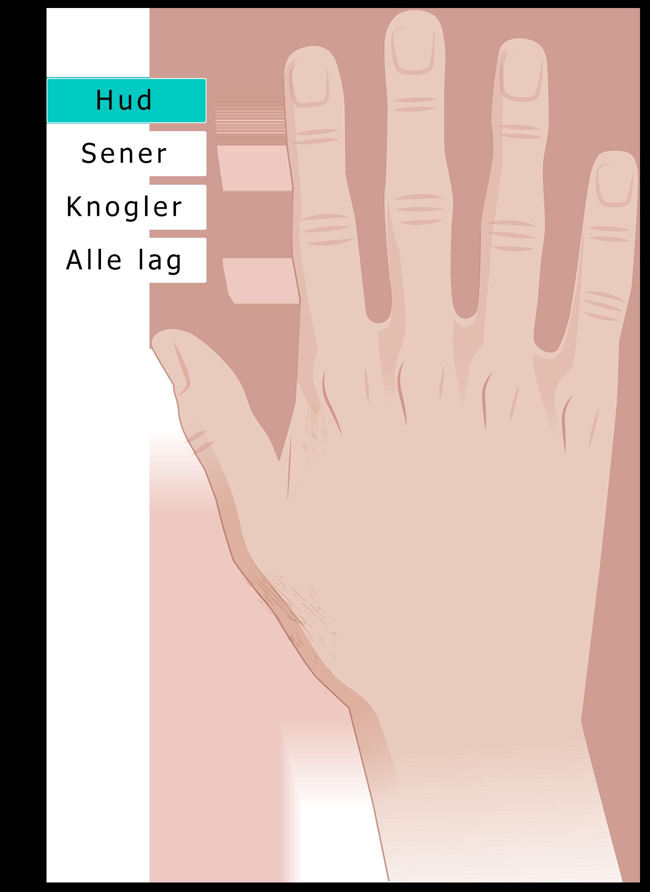 Hånd hud